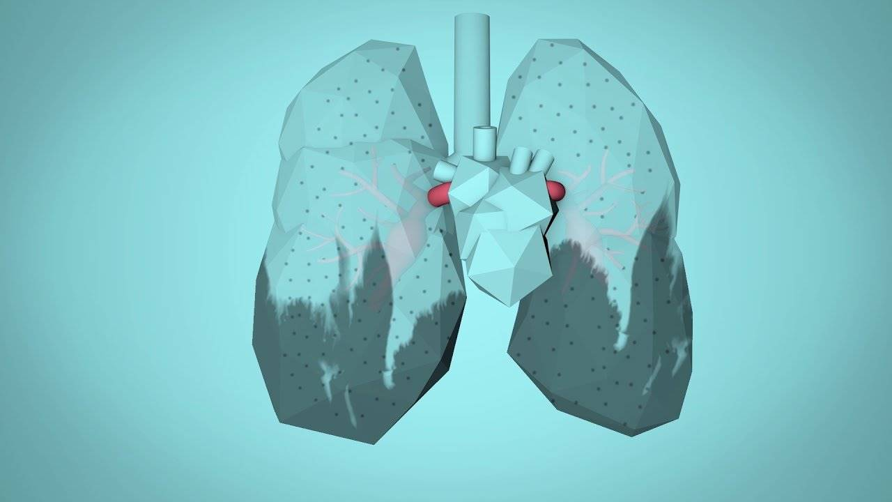 Hava Kirliliğinin Sağlığımıza Etkileri Nelerdir?